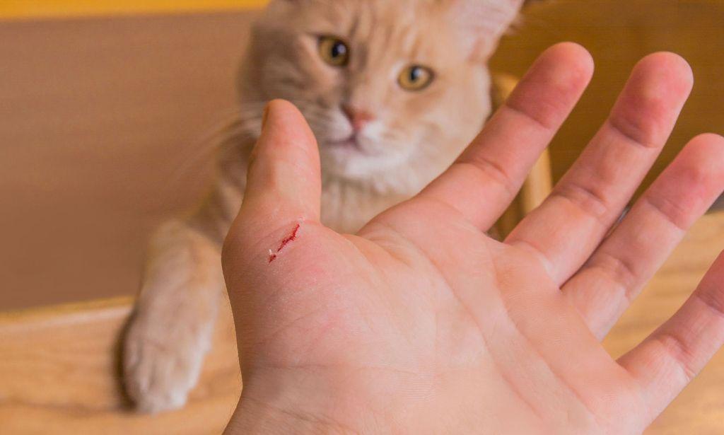 Укусила кошка и опухла рука: как помочь пострадавшему